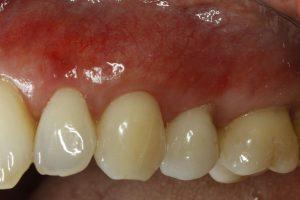after gum graft