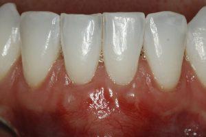 after gum grafts