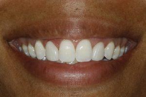 gummy smiles after